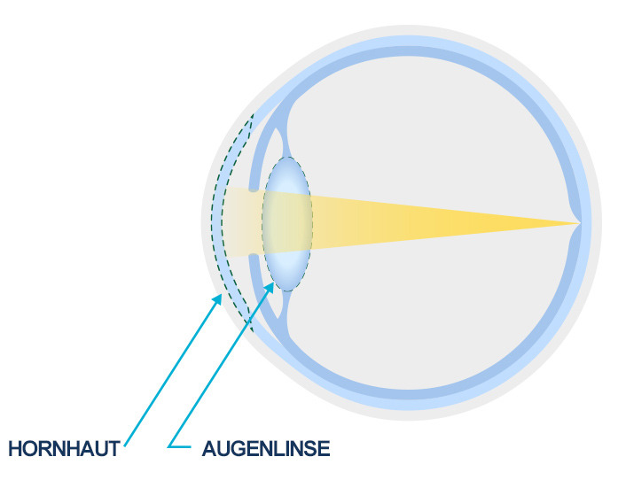 Diagram of a normal lens versus a cloudy lens from an eye cataract