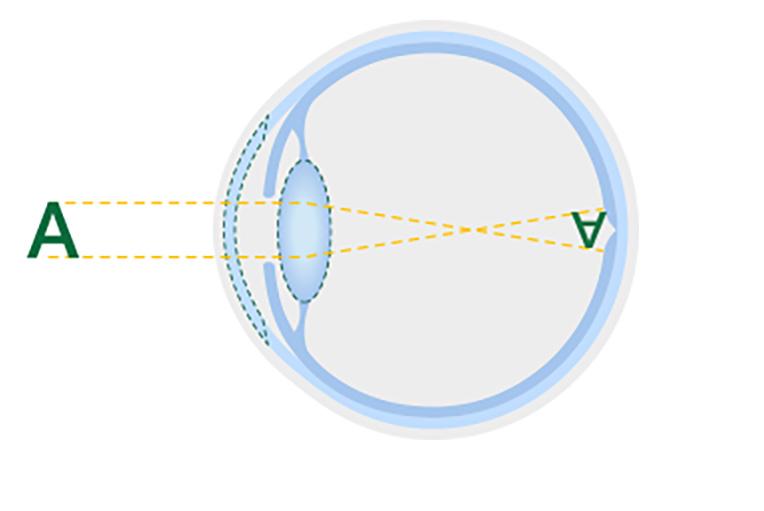 Diagram of a healthy lens